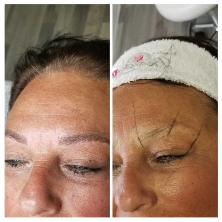 Microblading Only